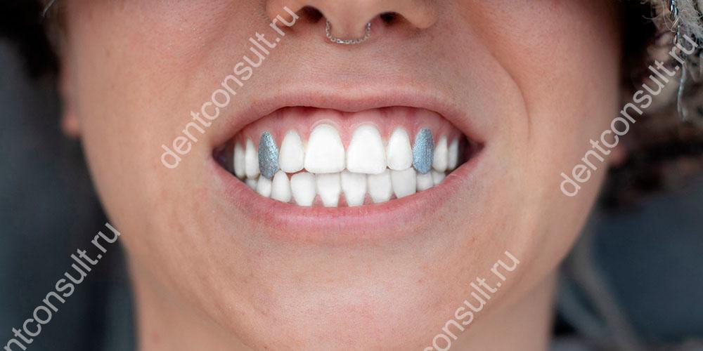 Мода в стоматологии