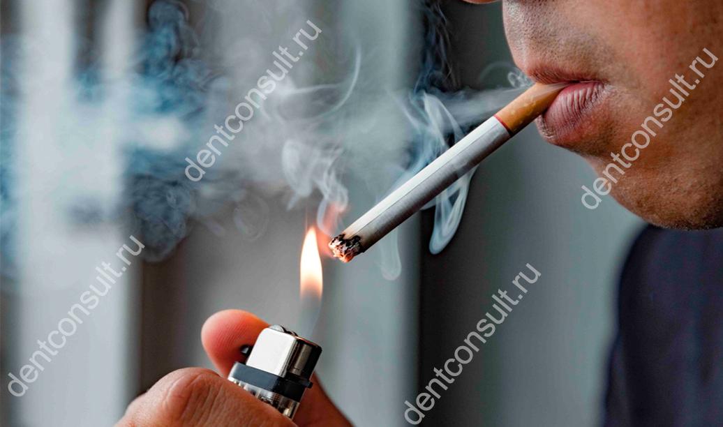 Как курение влияет на здоровье полости рта