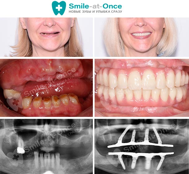 имплантация зубов all-on-4 до после