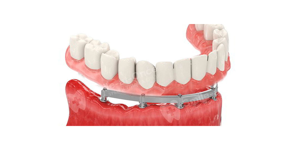 3all-on-6-implantacia