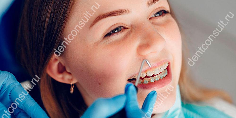 Брекет-система – отдельный метод ортодонтического лечения, призванный изменить положение корней, выровнять окклюзию, исправить серьезные дефекты.
