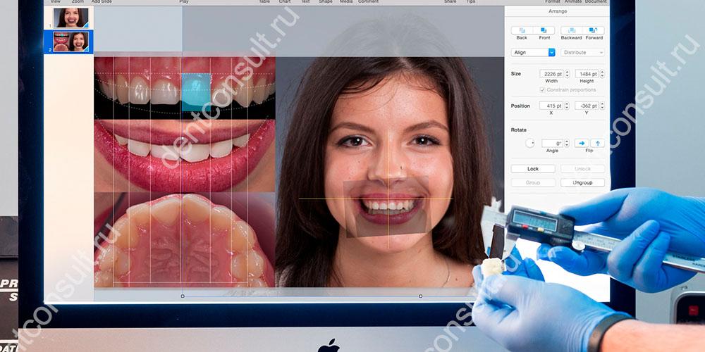 Программное обеспечение Digital Smile Design