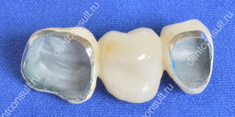 МРТ не проводится, если у пациента имеются коронки и протезные устройства, в составе которых есть отдельные виды металлов