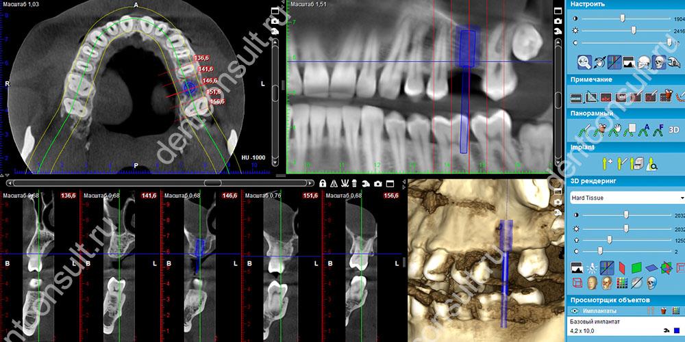 Моделирование улыбки и будущей ортопедической системы – неотъемлемый этап протезирования