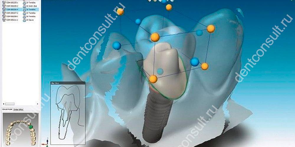 Моделирование зубных протезов в современных реалиях проводится с применением системы CAD/CAM