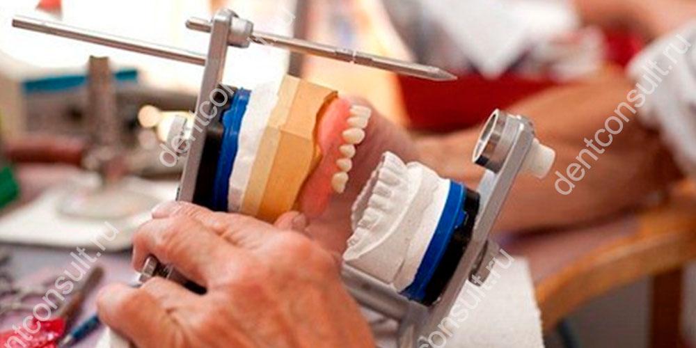 Системы данного типа считаются достаточно хрупкими и склонными к поломкам, особенно в местах крепления к зубам