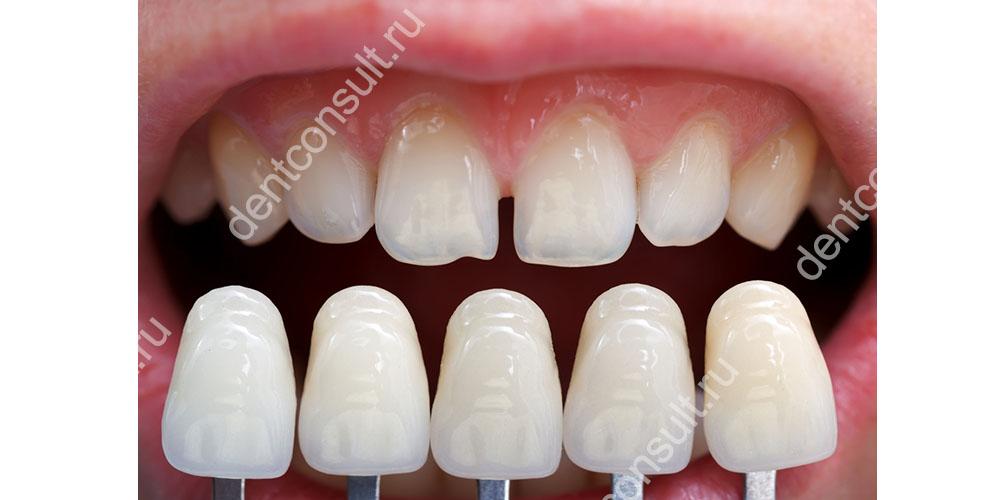Виниры позволяет скорректировать внешний вид, форму и размеры зубов и придать улыбке безукоризненную белизну