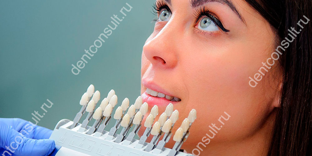 Виниры, это быстрый и эффективный способ получить красивую улыбку с идеально ровными зубами за короткий срок
