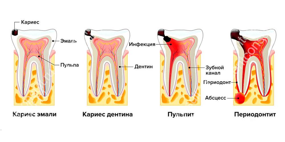Периодонтит - воспалению окружающих корень тканей